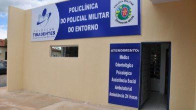 Photo of Odontologia: Policlínica de Valparaíso abre agenda para atendimentos
