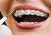 Photo of Departamento de Ortodontia e Ortopedia Facial do HPM Abre Vagas para Tratamento Ortodôntico de Crianças e Adultos